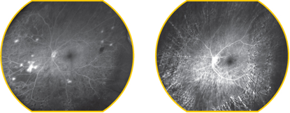 givre-gruppo-italiano-chirurgia-vitreoretinica-glossario-ecografia-oculare-003