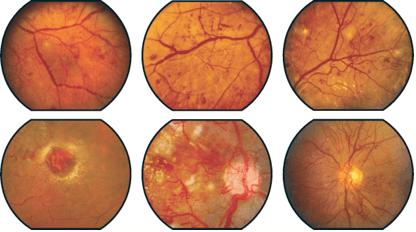 givre-gruppo-italiano-chirurgia-vitreoretinica-glossario-retinopatia-diabetica-001