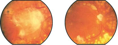 givre-gruppo-italiano-chirurgia-vitreoretinica-glossario-retinopatia-diabetica-004